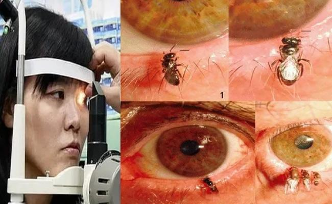 Doctors Find 4 Live Bees Inside Woman Eye And Feeding On Her Tears - Sakshi