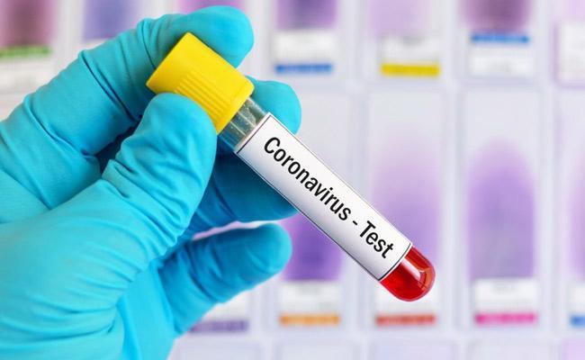 Coronavirus Uttar Pradesh To Get 3 New RT PCR Testing Labs - Sakshi